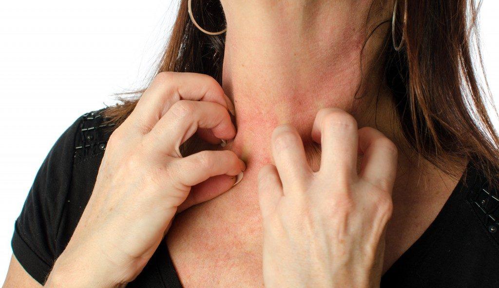 rashes on her neck