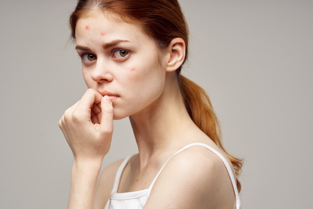 woman with pimples on face